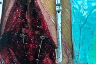 Spinal Surgery Lateral Mass Screw Fixation